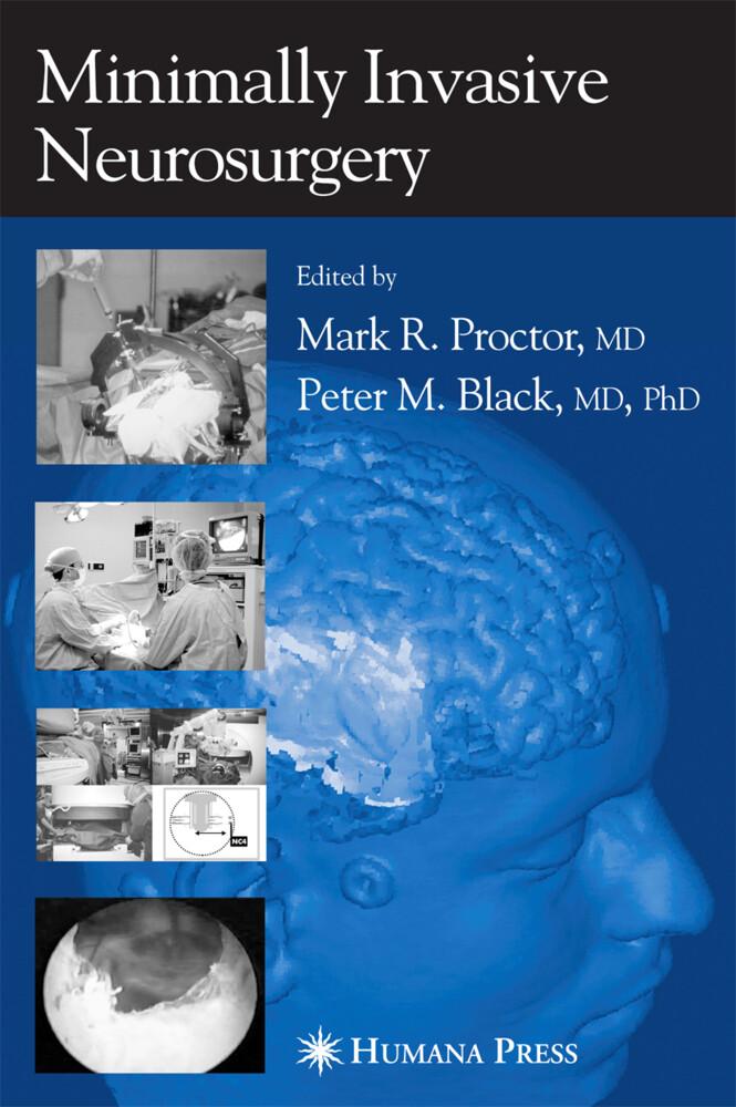 Minimally Invasive Neurosurgery als Buch