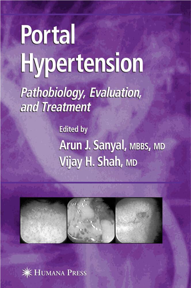 Portal Hypertension als Buch