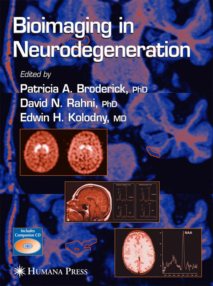 Bioimaging in Neurodegeneration als Buch