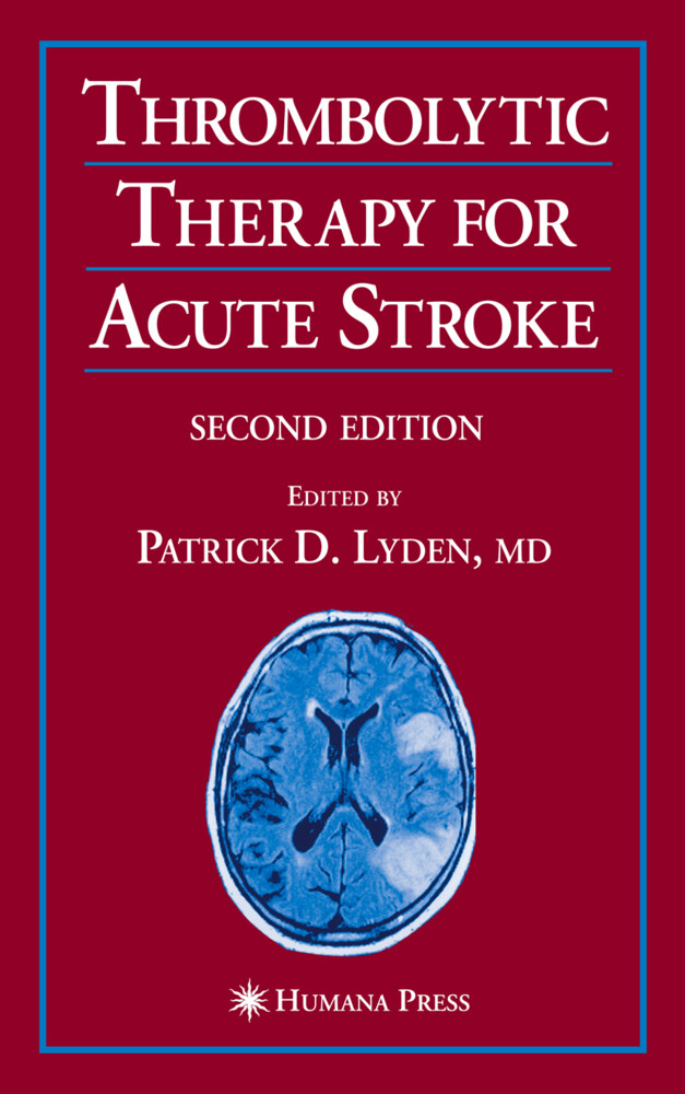 Thrombolytic Therapy for Acute Stroke als Buch