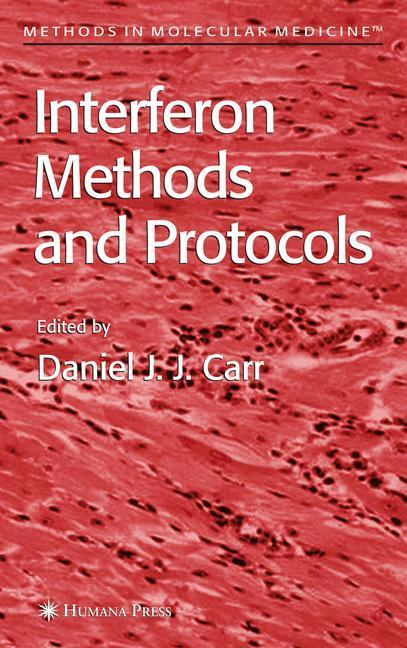 Interferon Methods and Protocols als Buch