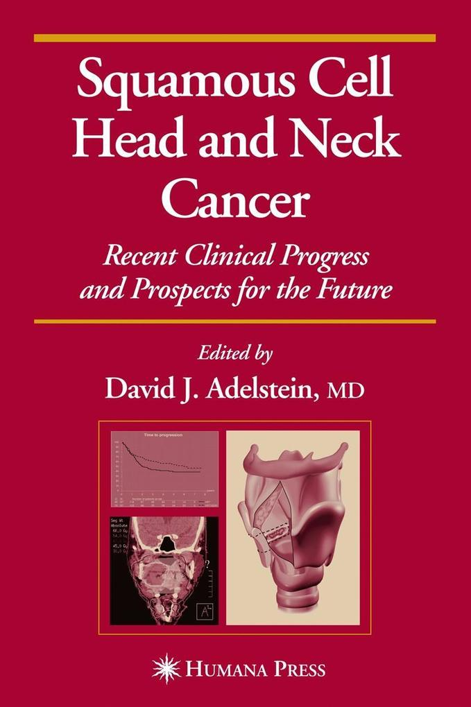 Squamous Cell Head and Neck Cancer: Recent Clinical Progress and Prospects for the Future als Buch