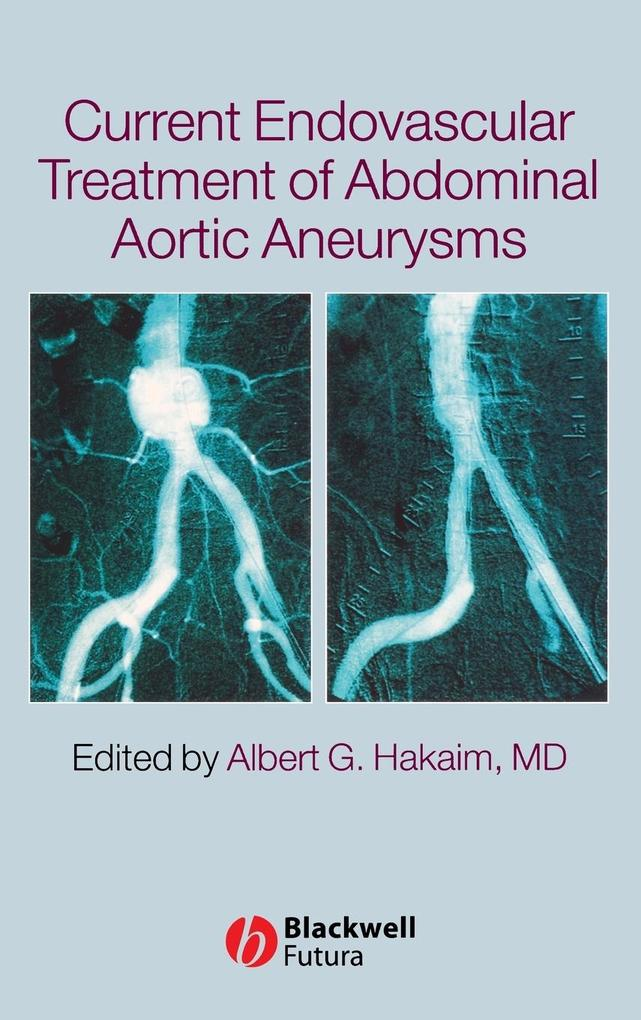 Current Endovascular Treatment of Abdominal Aortic Aneurysms als Buch