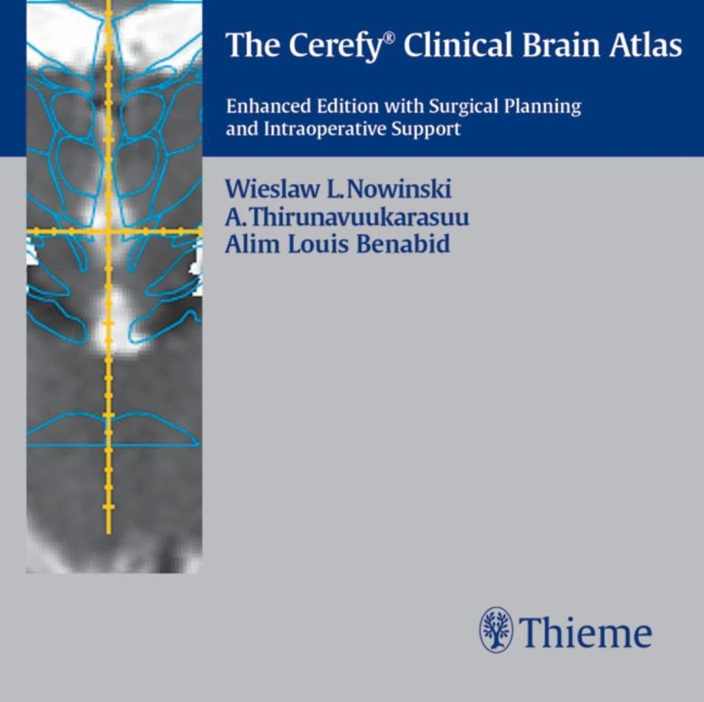 The Cerefy Clinical Brain Atlas/CD-ROM: Enhanced Edition with Surgical Planning and Intraoperative Support als Spielwaren