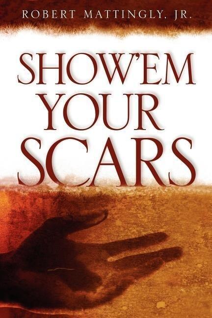 Show'em Your Scars als Taschenbuch