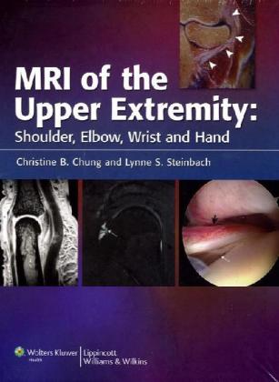 MRI of the Upper Extremity als Buch