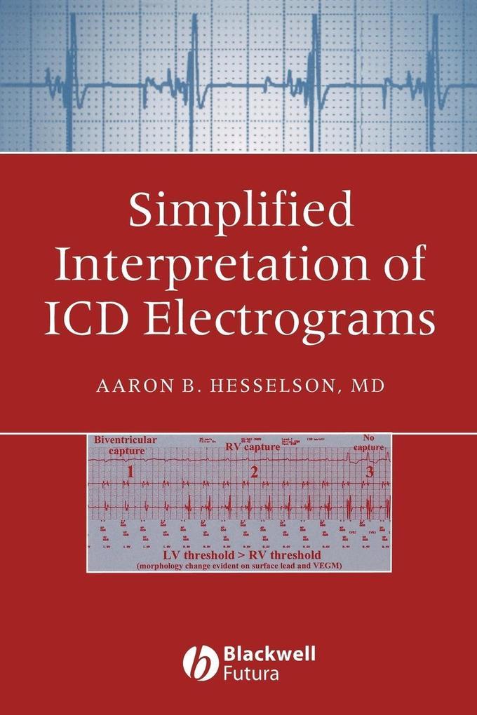 Simplified Interpretation Electrograms als Taschenbuch