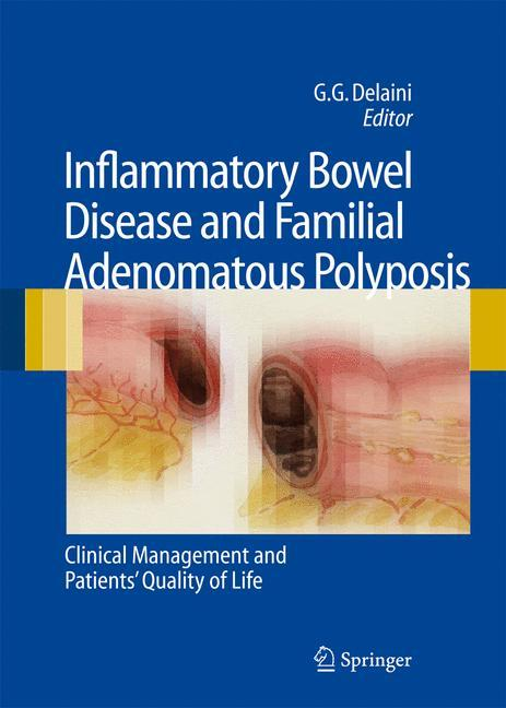 Inflammatory Bowel Disease and Familial Adenomatous Polyposis als Buch