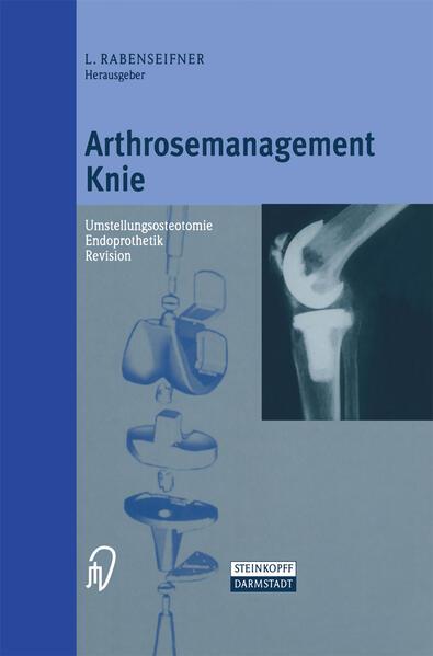 Arthrosemanagement Knie als Buch