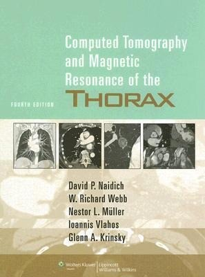 Computed Tomography and Magnetic Resonance of the Thorax als Buch
