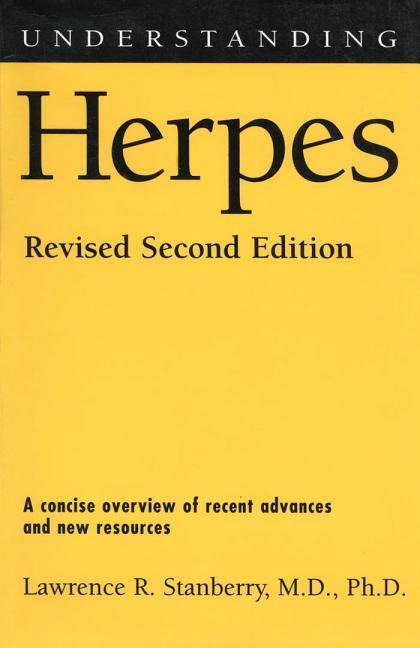 Understanding Herpes: Revised Second Edition als Buch