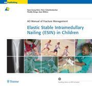 Elastic Stable Intramedullary Nailing (ESIN) in Children