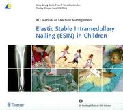 Elastic Stable Intramedullary Nailing (ESIN) in Children [With DVD]