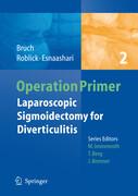 Laparoscopic Sigmoidectomy for Diverticulitis