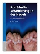 Krankhafte Veränderungen des Nagels