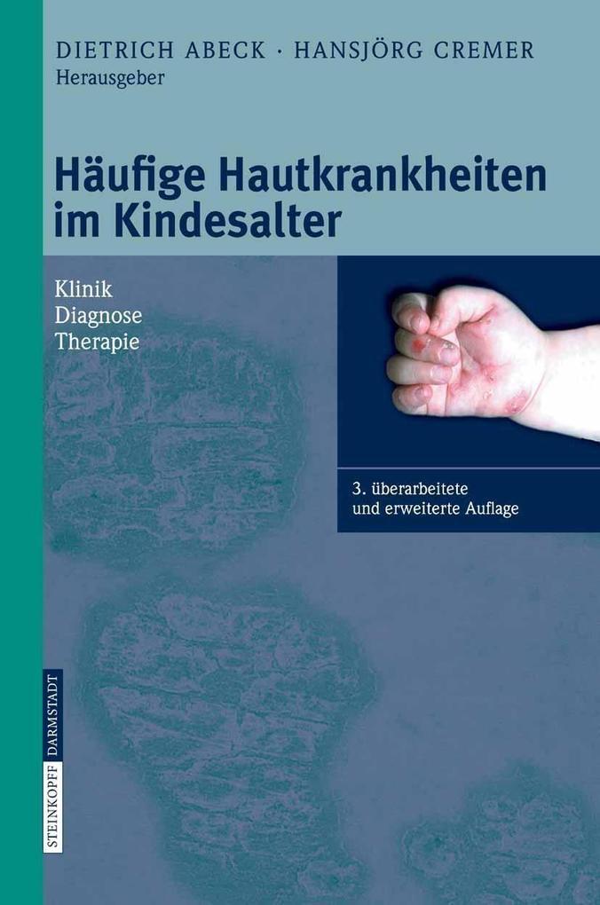 Häufige Hautkrankheiten im Kindesalter als eBoo...